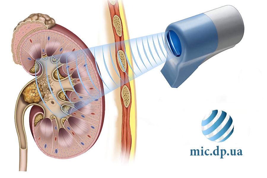 Литотрипсия-Международная Инновационная Клиника