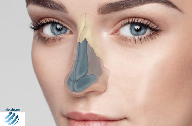 Риносептопластика (пластика носа)