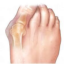лечение деформации первого пальца стопы