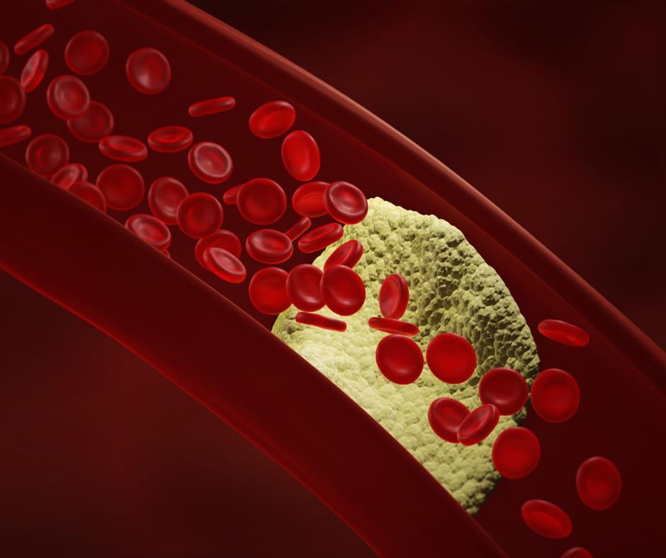 атеросклероз судин